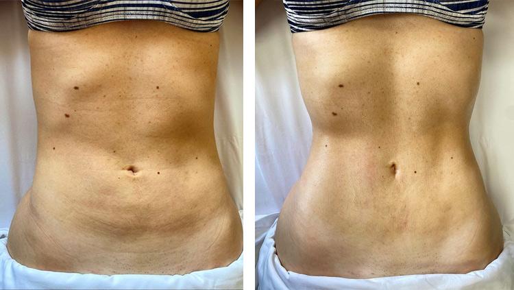 Antes e depois na barriga com o método Renata França